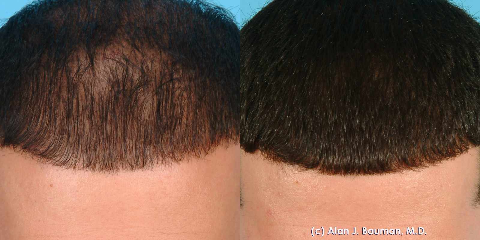 PRP Hair Loss Example