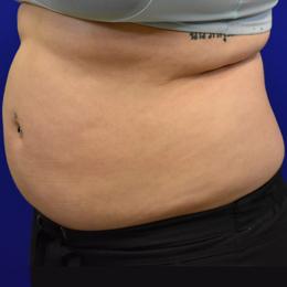 Liposuction Before Left Side