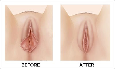 Labiaplasty - Labia Reduction